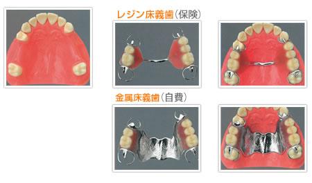 上顎部分床義歯