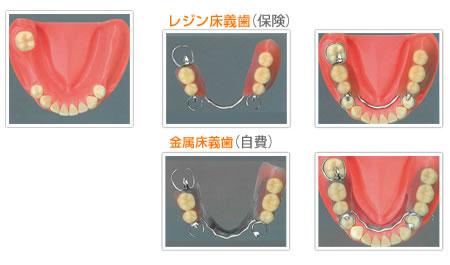 下顎部分床義歯