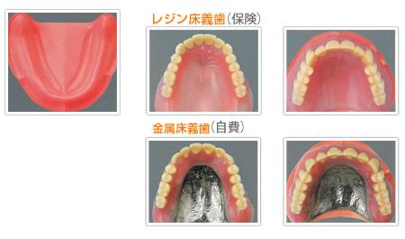 上顎総義歯